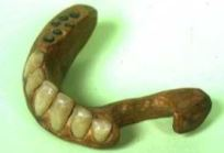 江戸時代入れ歯